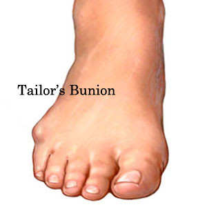 los_angeles_foot_doctor_tailors_bunion-300x300