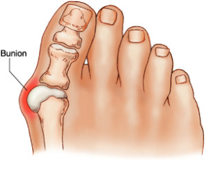 Bunion Treatments & Removal